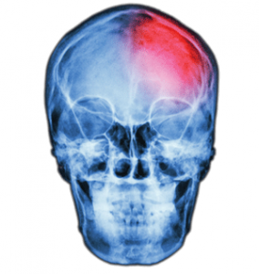 Brain inflammation shown in X-ray
